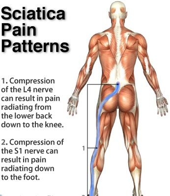 Chiropractic Denver Back For Sciatic treatment